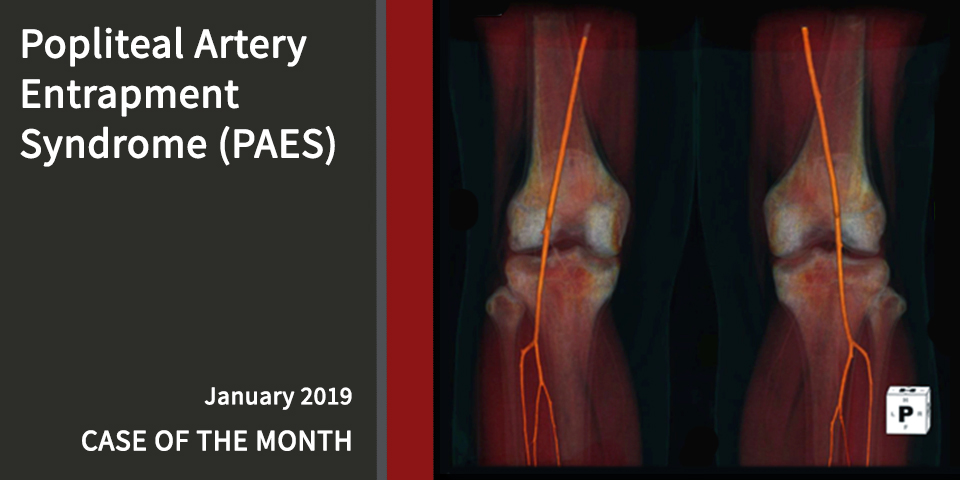 2019-CotM-January-Popliteal-Artery-Entrapment-Syndrome-PAES